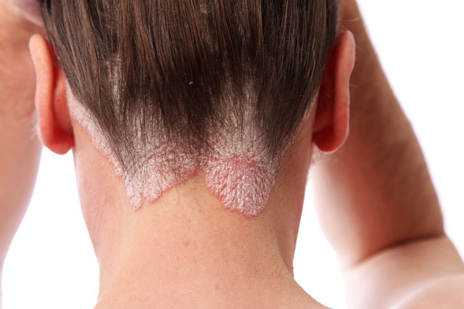 Psoriasis & Eczema Treatments
