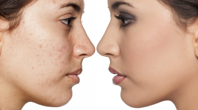 Acne: Self-Reflection