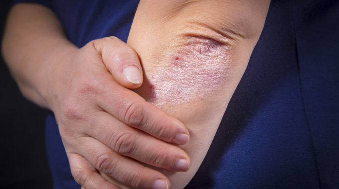 Can My Diet Help Improve My Psoriasis?